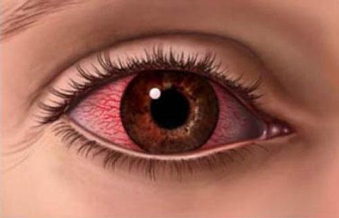 As Diversas Causas do Olho Vermelho