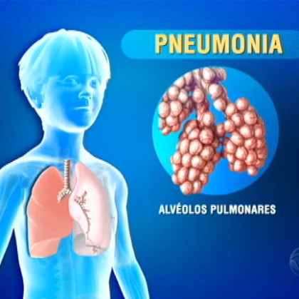 Pneumonia pode ser prevenida por vacina